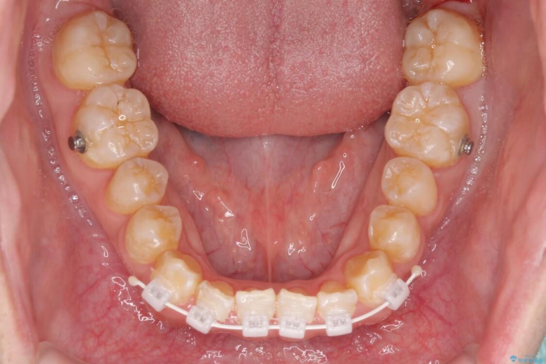 下顎前歯と上顎の部分矯正の適用例 ビフォー