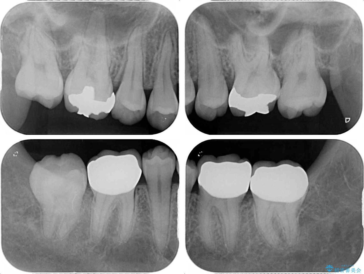 深い咬み合わせと奥歯のむし歯 総合歯科治療 治療後画像