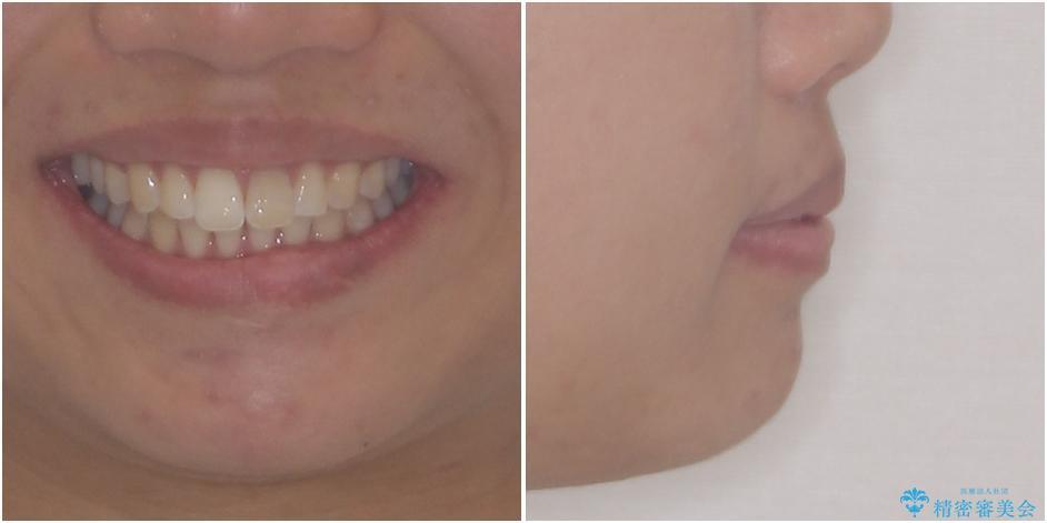 インビザライン矯正とオールセラミッククラウンで気になる前歯の治療 治療前画像