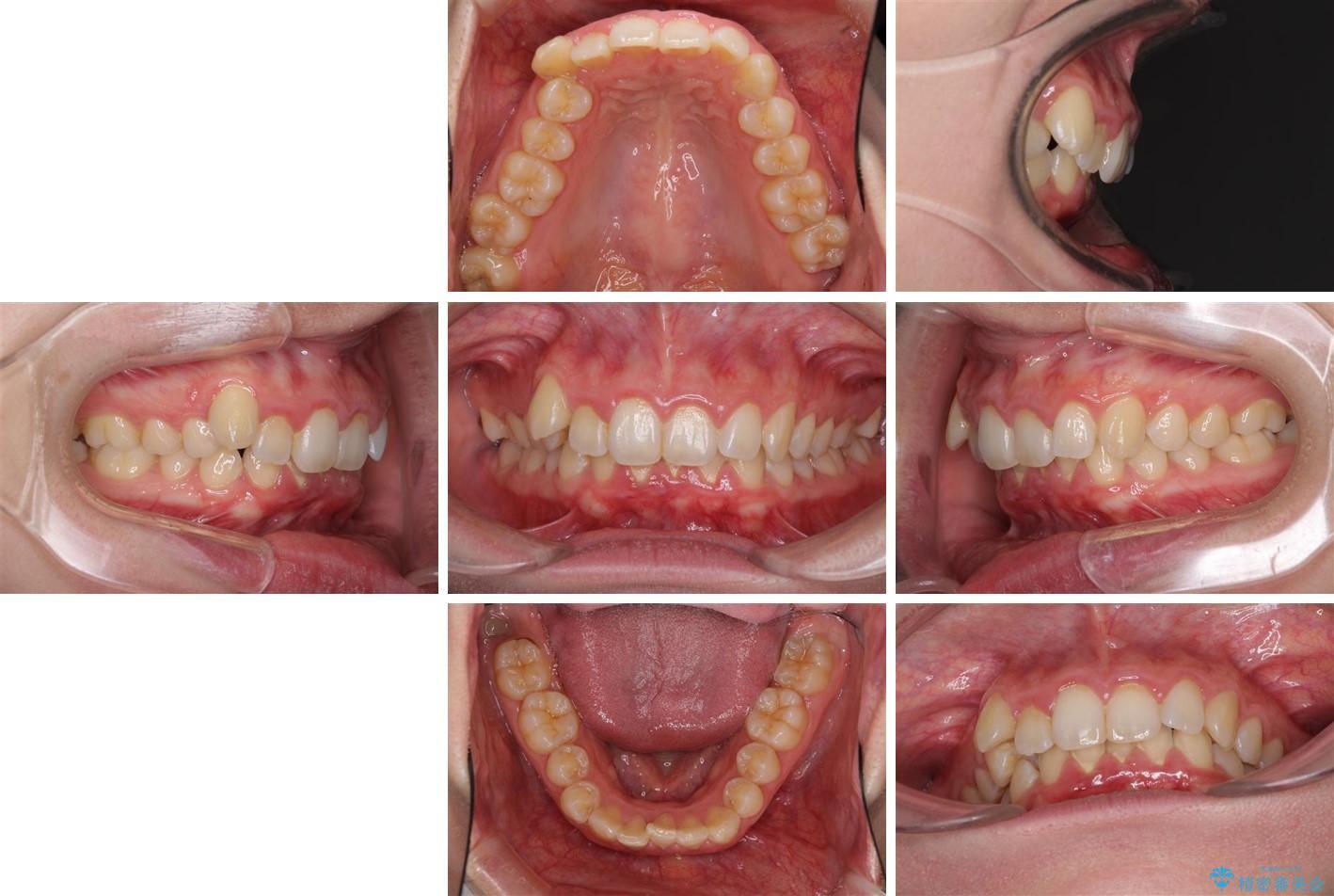 インビザラインと補助装置を用いた抜歯矯正で気になる八重歯を治療 治療前画像