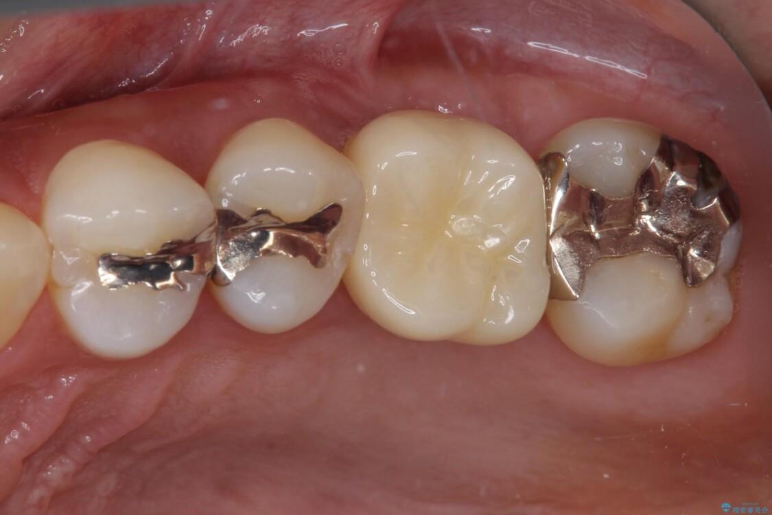 虫歯が進行して抜歯になってしまった奥歯のインプラント治療 アフター