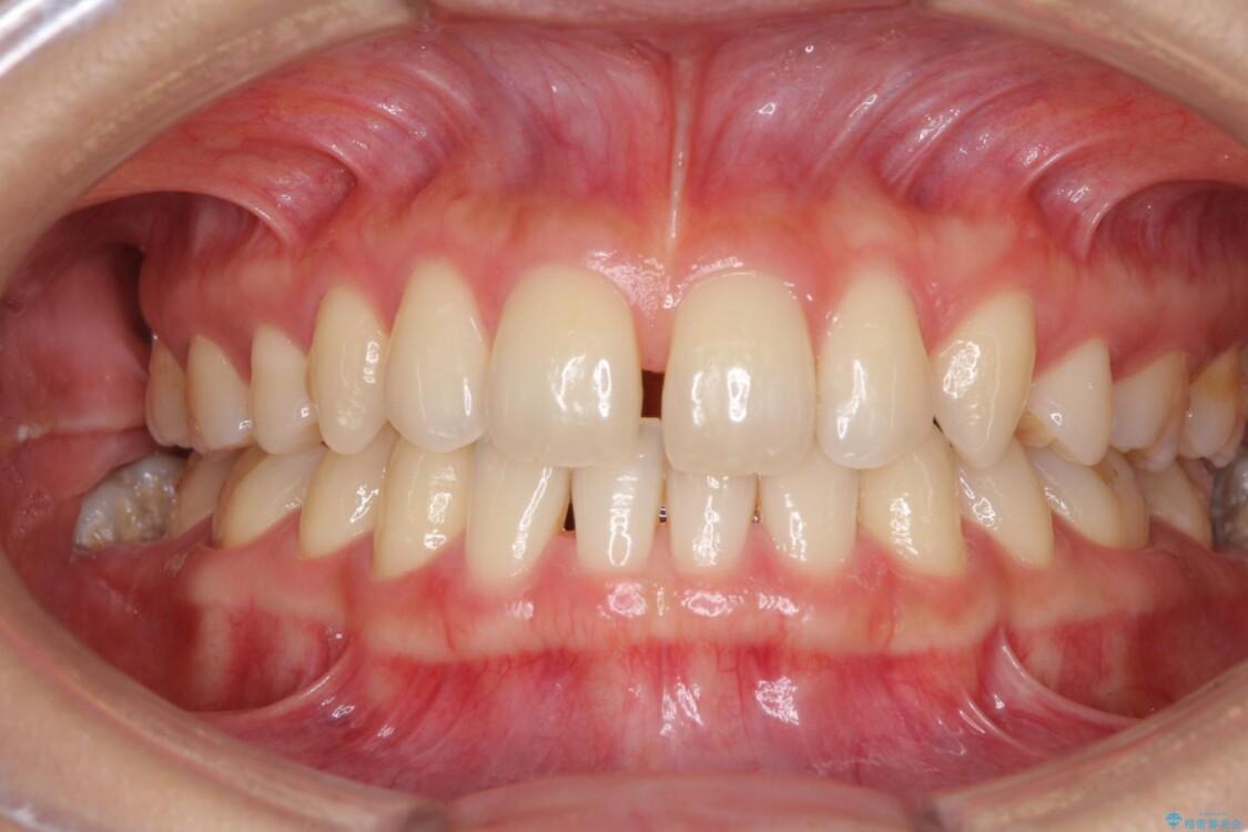 抜歯矯正の後戻りによるすきっ歯をインビザラインで治療 ビフォー