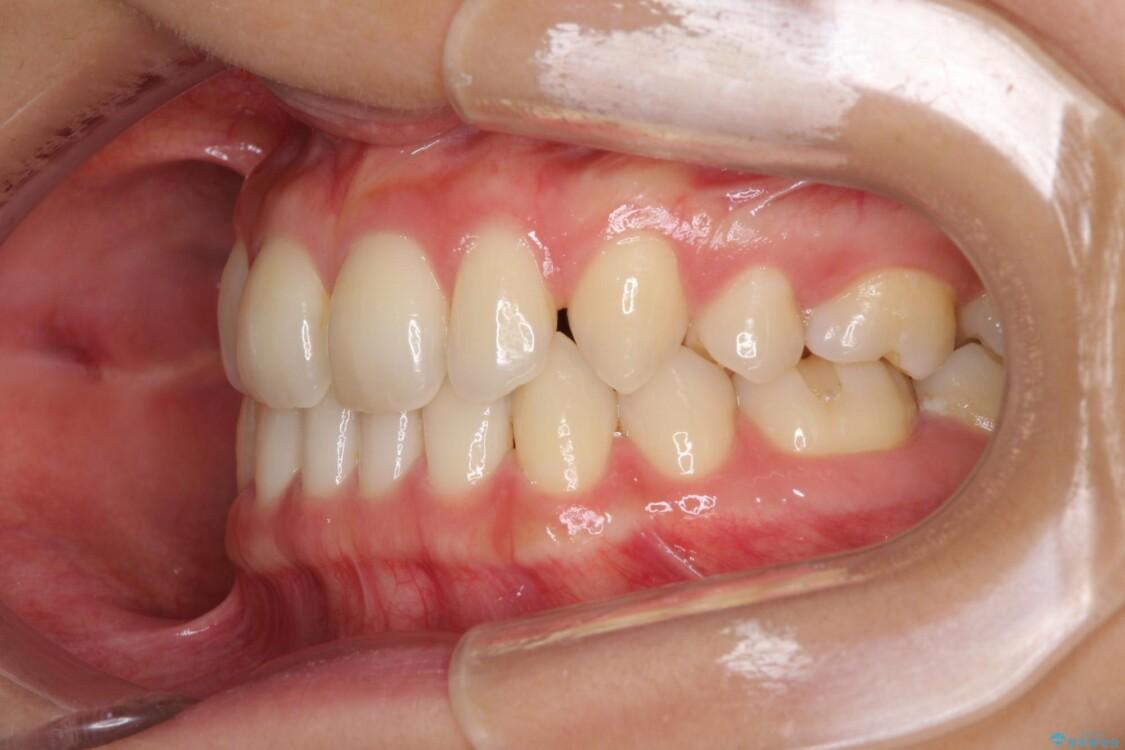 抜歯矯正の後戻りによるすきっ歯をインビザラインで治療 治療前画像