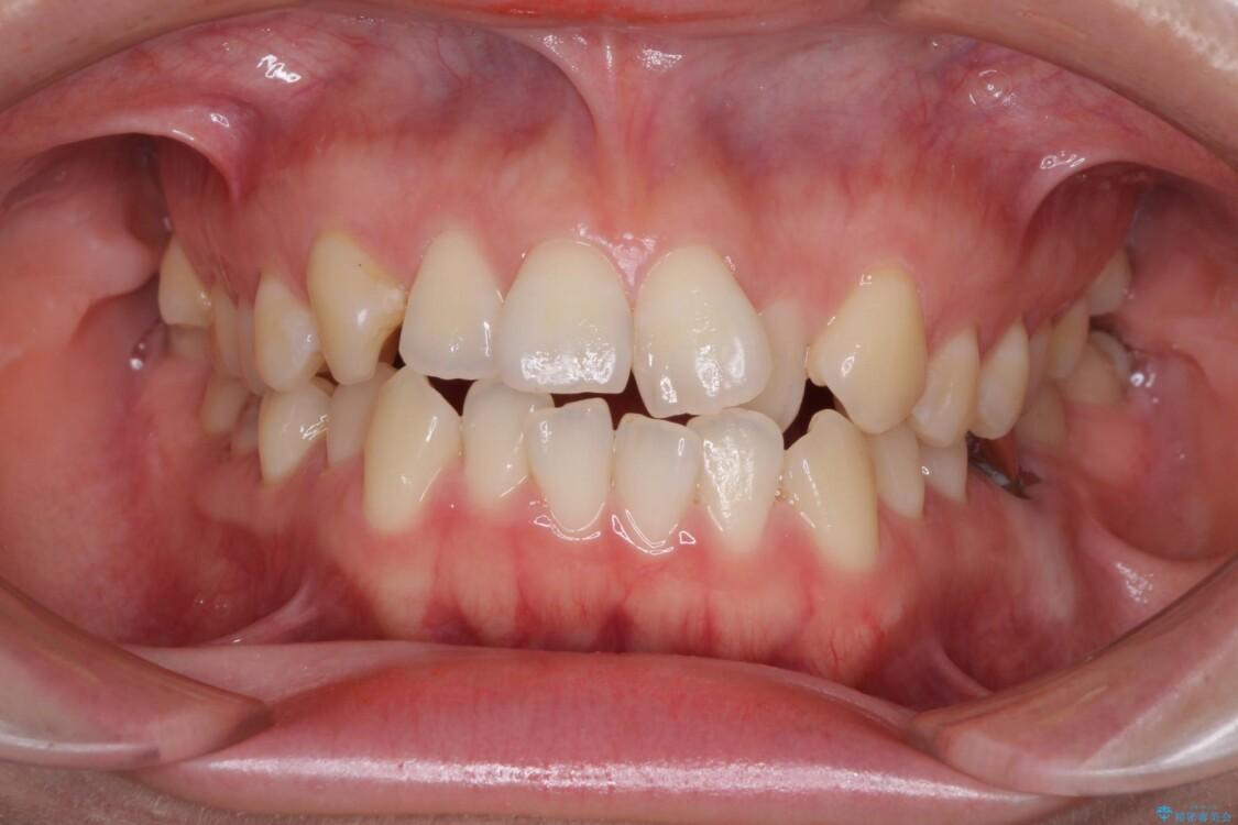 前歯のデコボコを治したい ワイヤー矯正 ビフォー