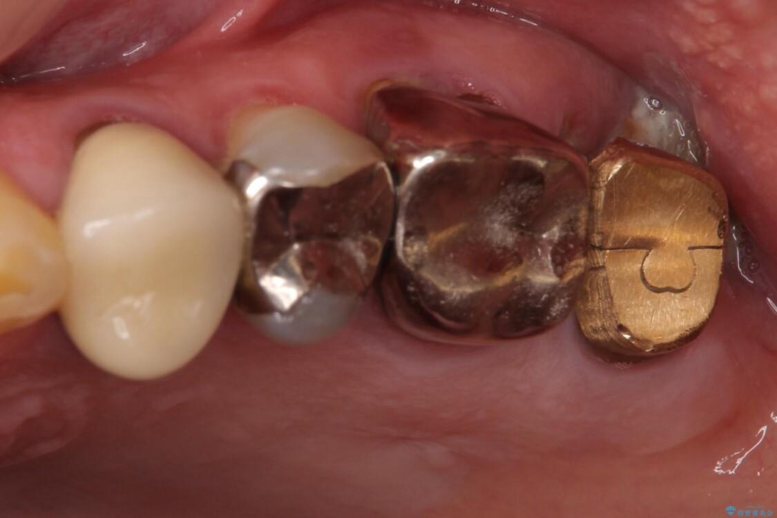 折れてしまった奥歯 インプラントによる補綴治療 ビフォー