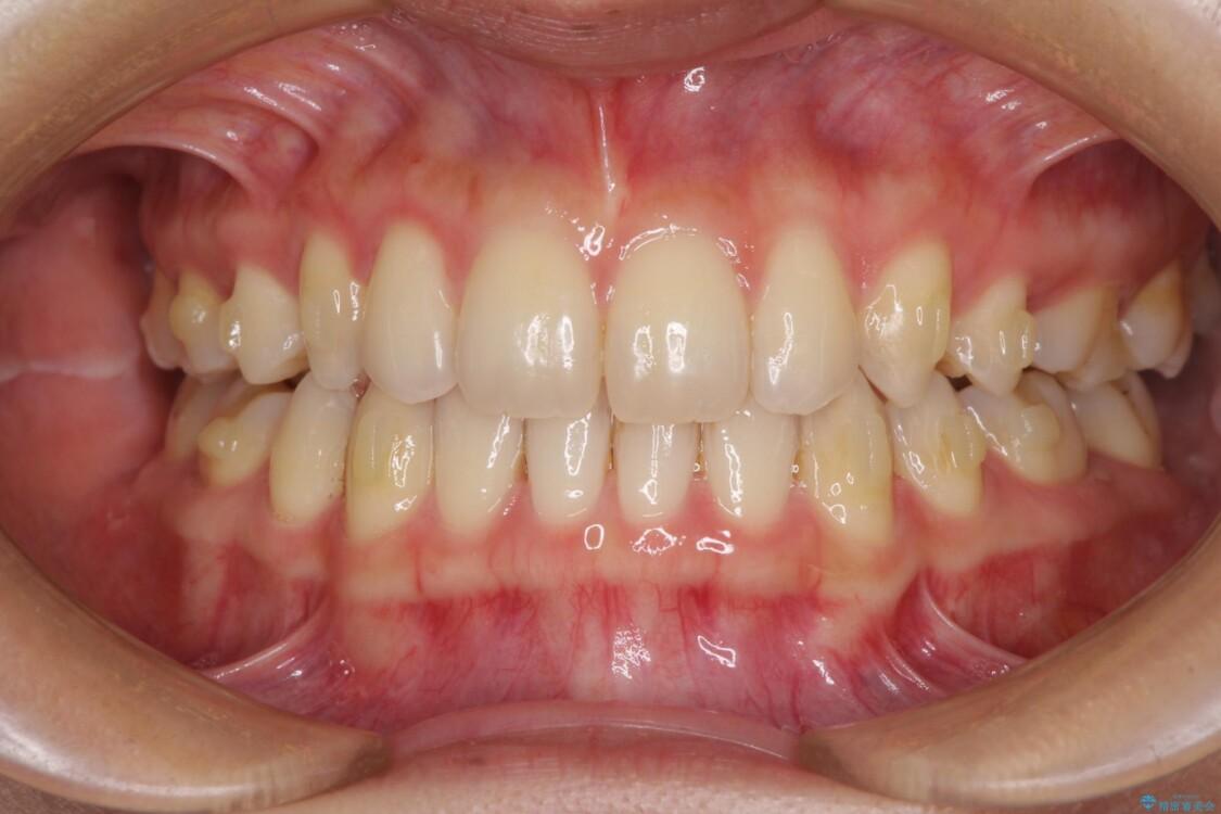 抜歯矯正の後戻りによるすきっ歯をインビザラインで治療 治療途中画像