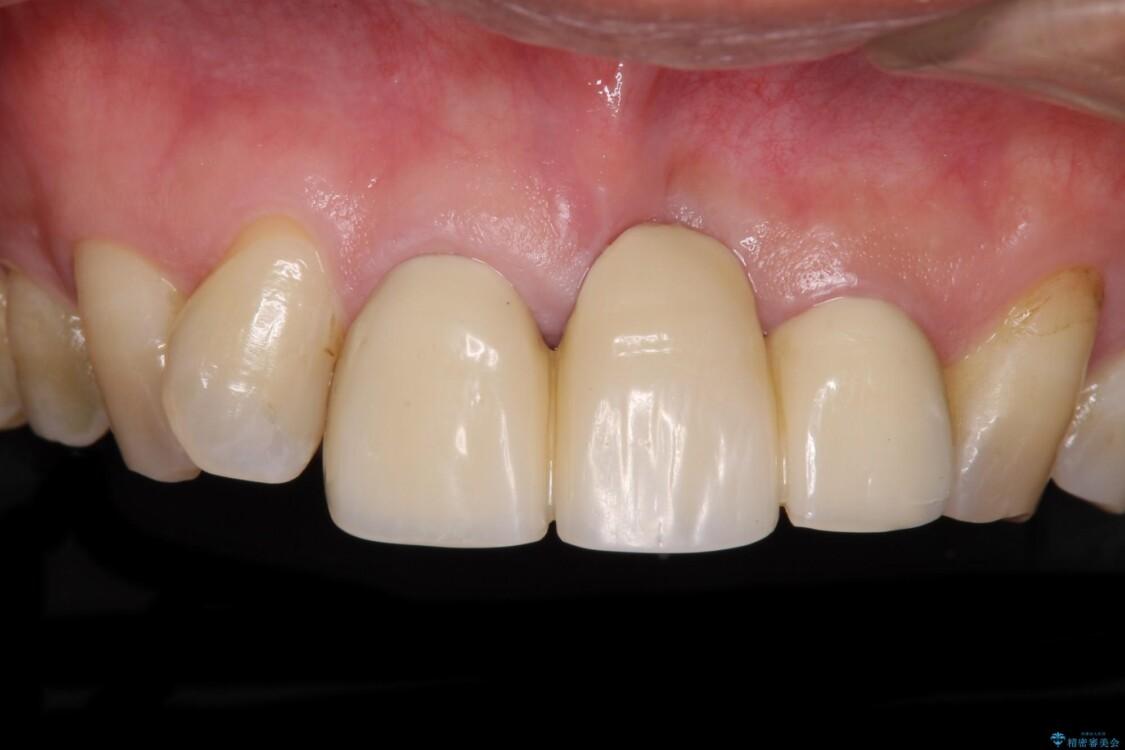 不自然な前歯のブリッジをオールセラミックできれいに ビフォー