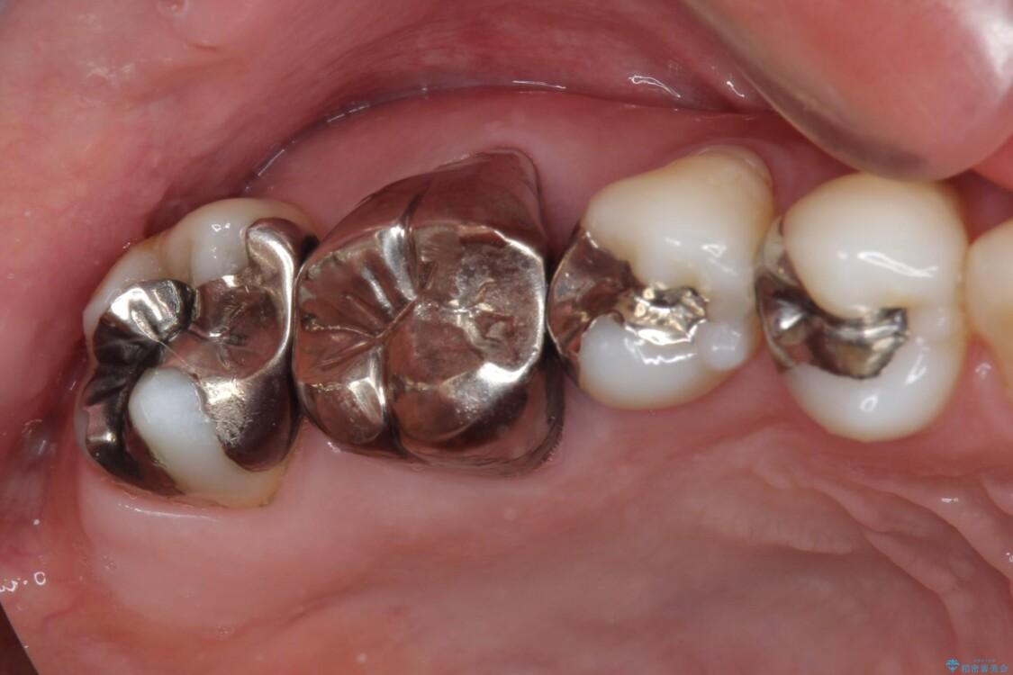 奥歯が痛む セラミッククラウンによるむし歯治療 ビフォー