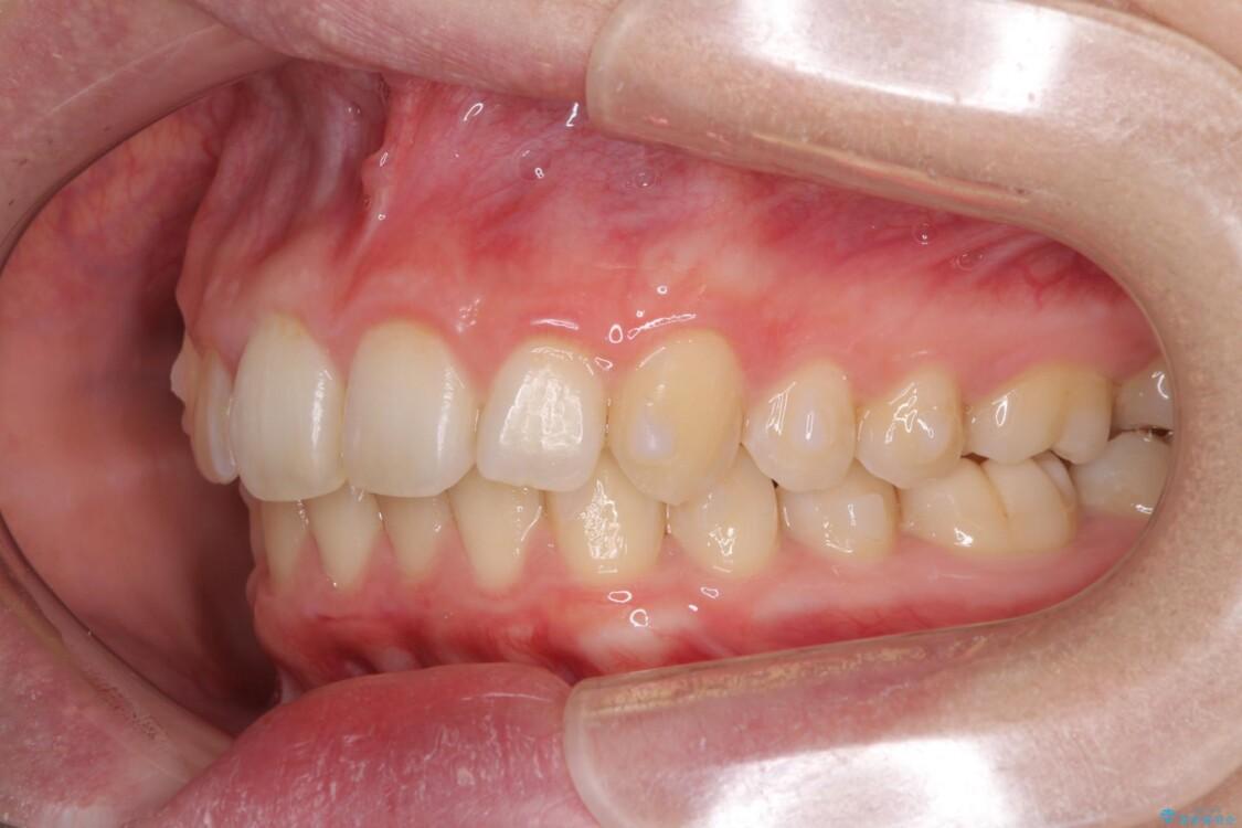 インビザラインと補助装置を用いた抜歯矯正で気になる八重歯を治療 治療途中画像