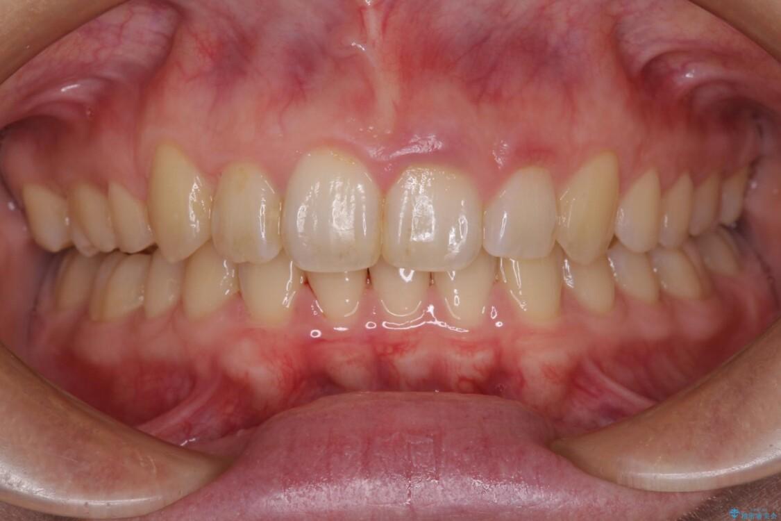 インビザラインと補助装置を用いた抜歯矯正で気になる八重歯を治療 アフター