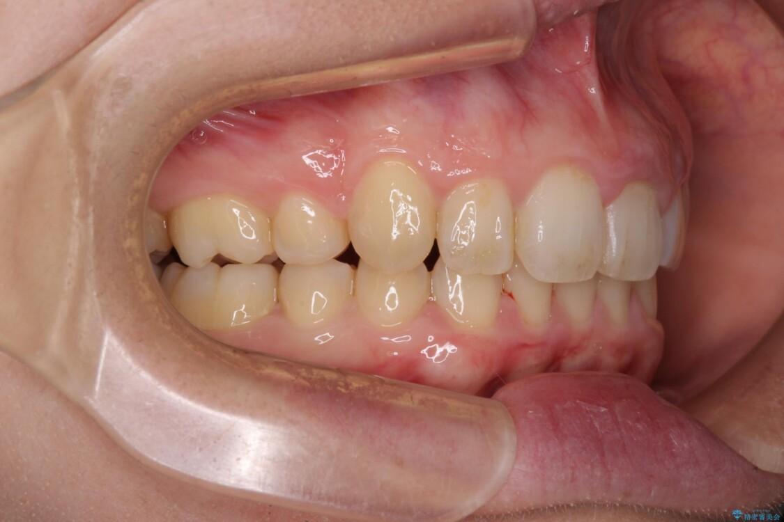 インビザラインと補助装置を用いた抜歯矯正で気になる八重歯を治療 治療後画像
