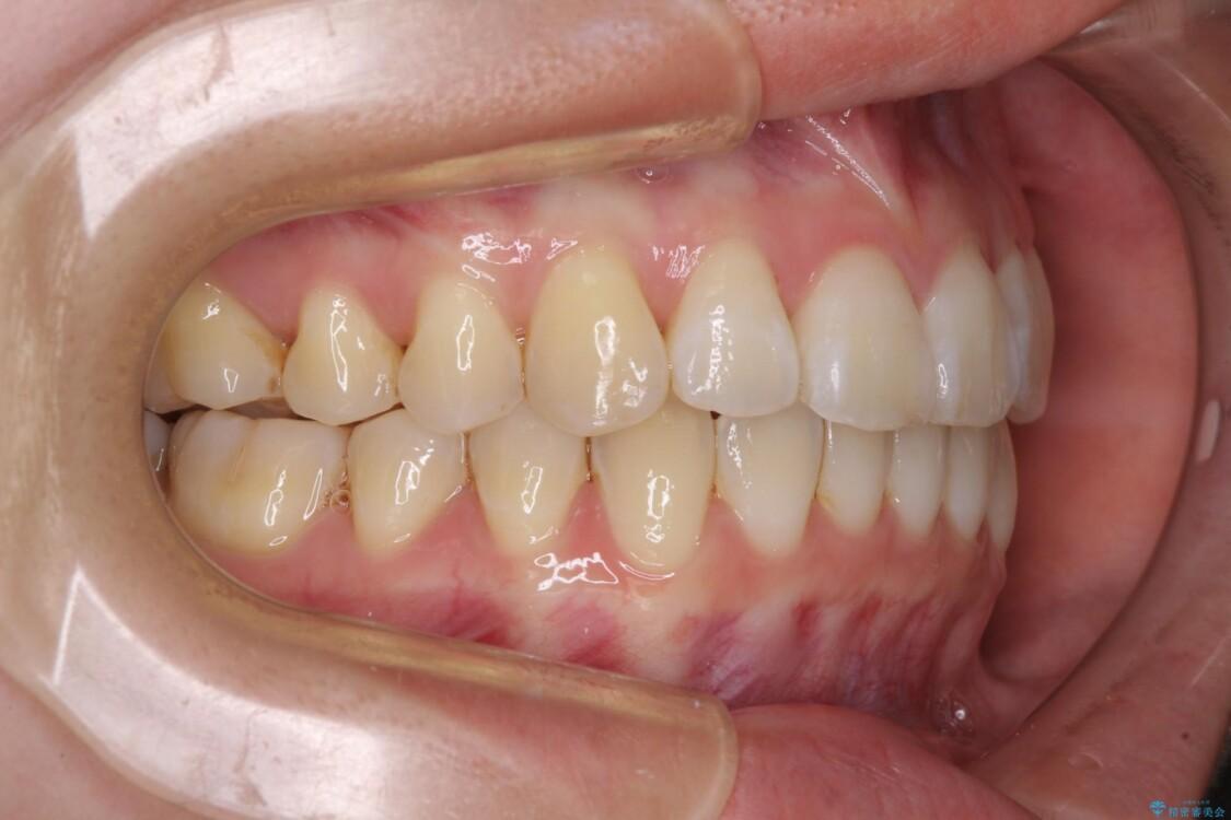 海外留学をしながら歯列を整えたい インビザラインによる矯正治療 治療途中画像
