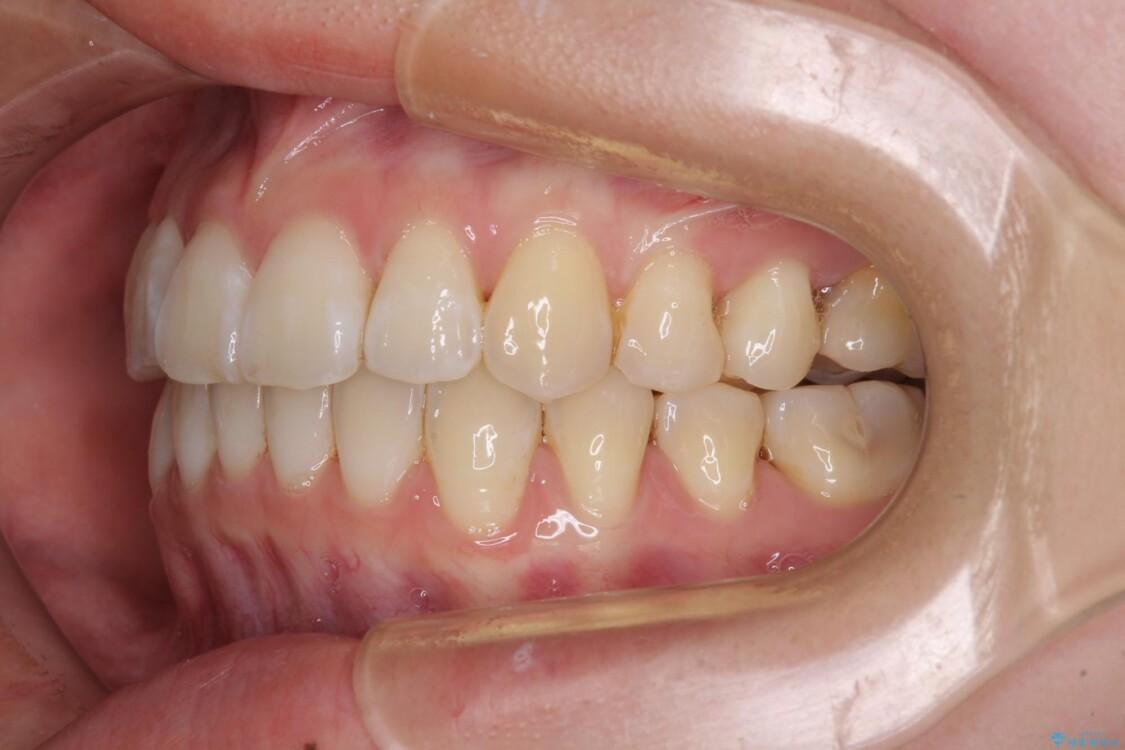 海外留学をしながら歯列を整えたい インビザラインによる矯正治療 治療後画像