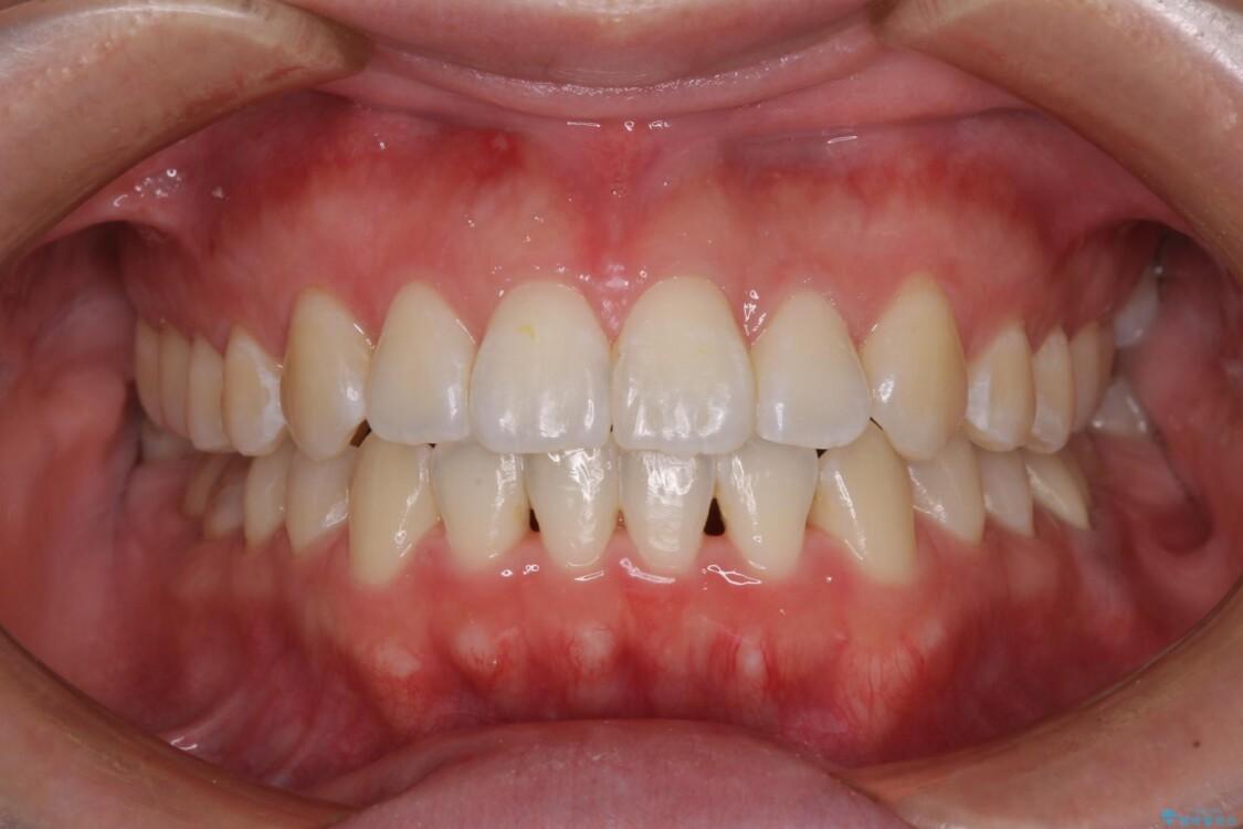 前歯のデコボコを治したい ワイヤー矯正 アフター