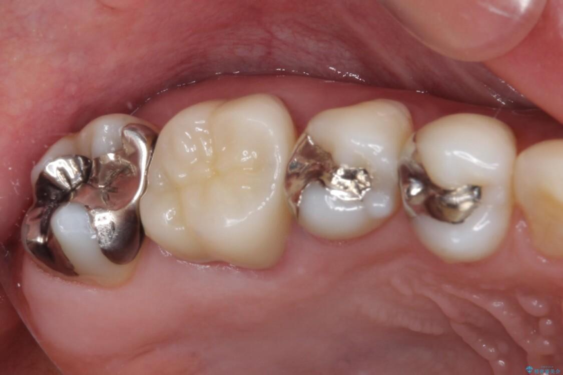 奥歯が痛む セラミッククラウンによるむし歯治療 アフター