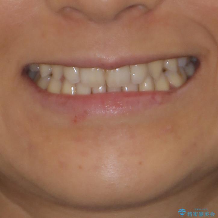 抜歯矯正の後戻りによるすきっ歯をインビザラインで治療 治療後画像