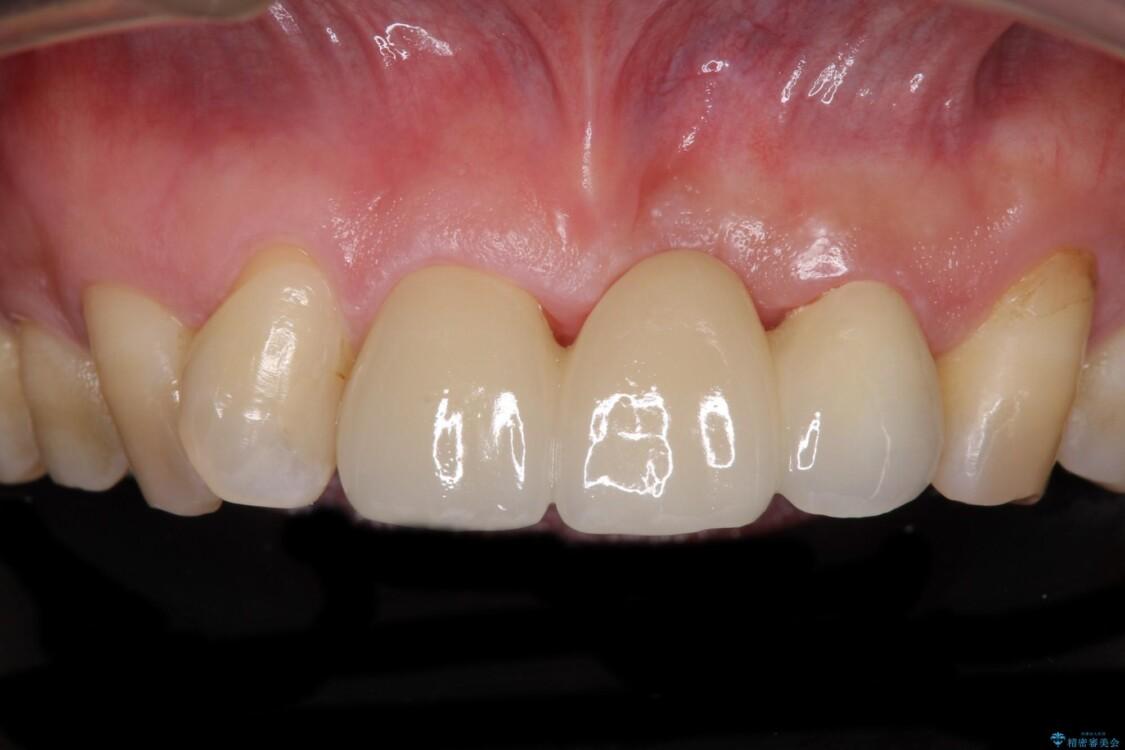 不自然な前歯のブリッジをオールセラミックできれいに アフター