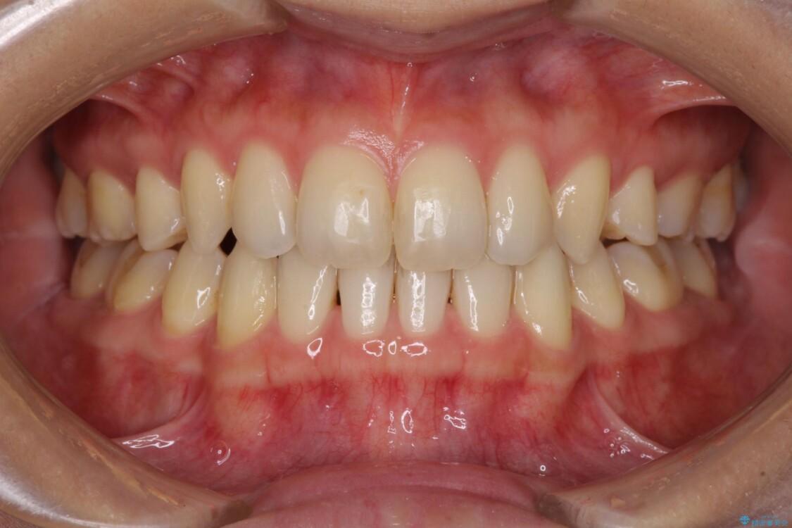 抜歯矯正の後戻りによるすきっ歯をインビザラインで治療 アフター