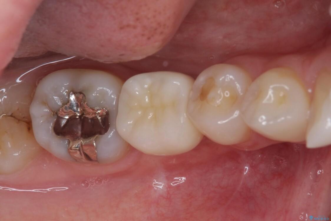 折れてしまった下の奥歯のインプラント治療 アフター