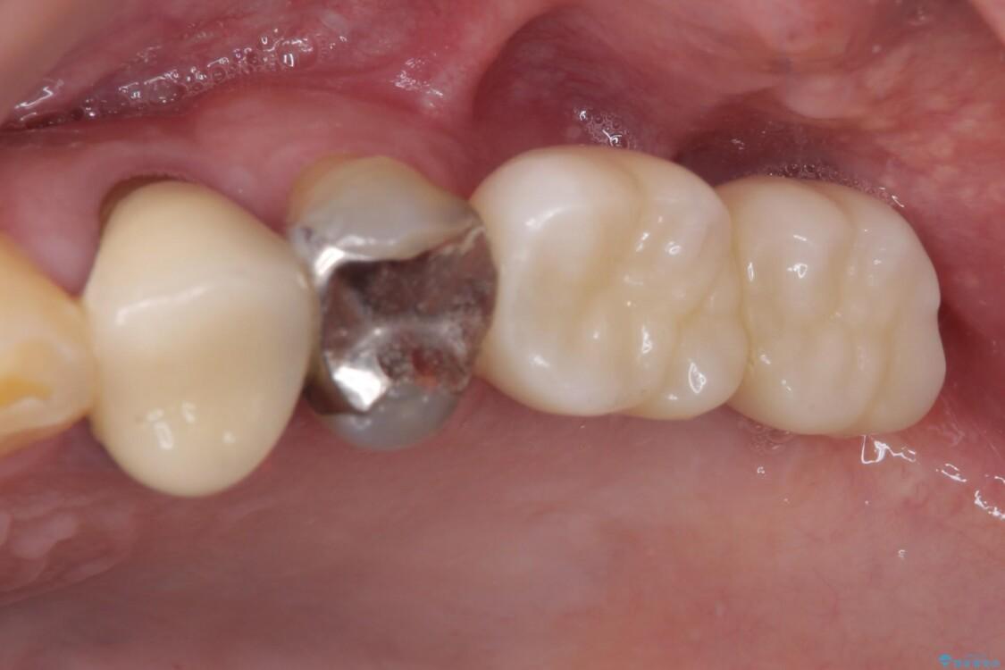 折れてしまった奥歯 インプラントによる補綴治療 アフター