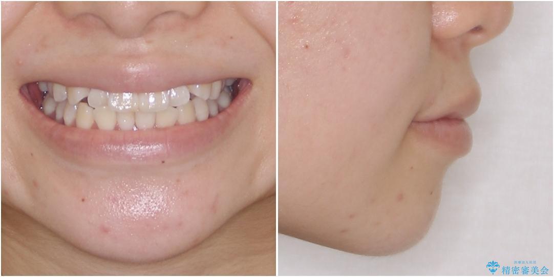 海外留学をしながら歯列を整えたい インビザラインによる矯正治療 治療前画像