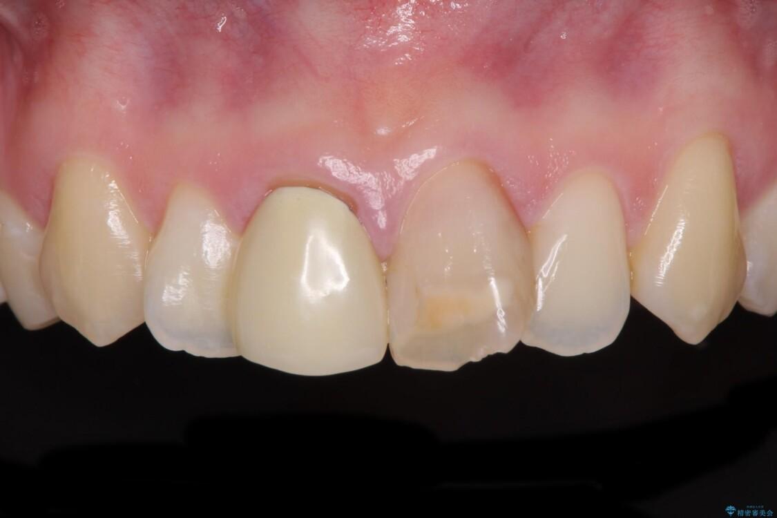 変色した前歯のオールセラミック治療 ビフォー