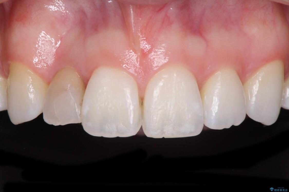 変色した前歯 オーダーメイドタイプのオールセラミッククラウン ビフォー