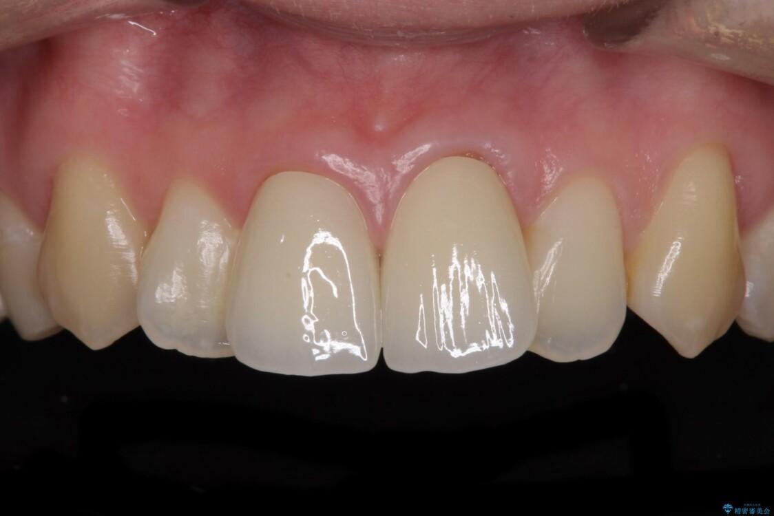 変色した前歯のオールセラミック治療 アフター