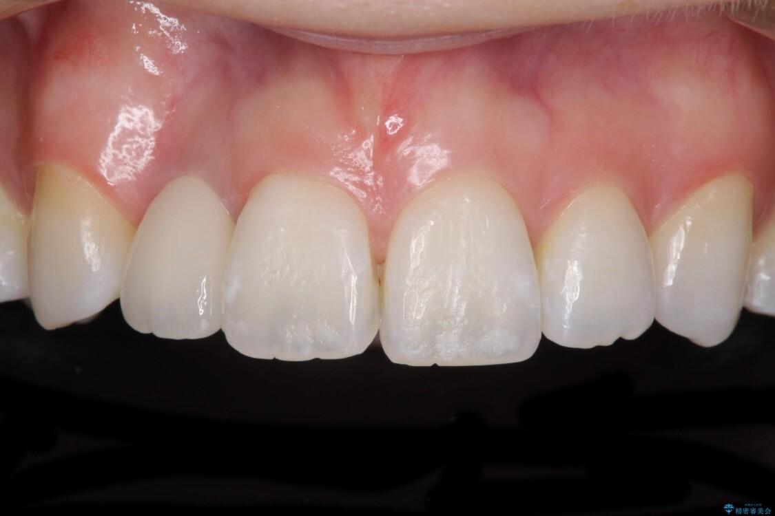 変色した前歯 オーダーメイドタイプのオールセラミッククラウン アフター