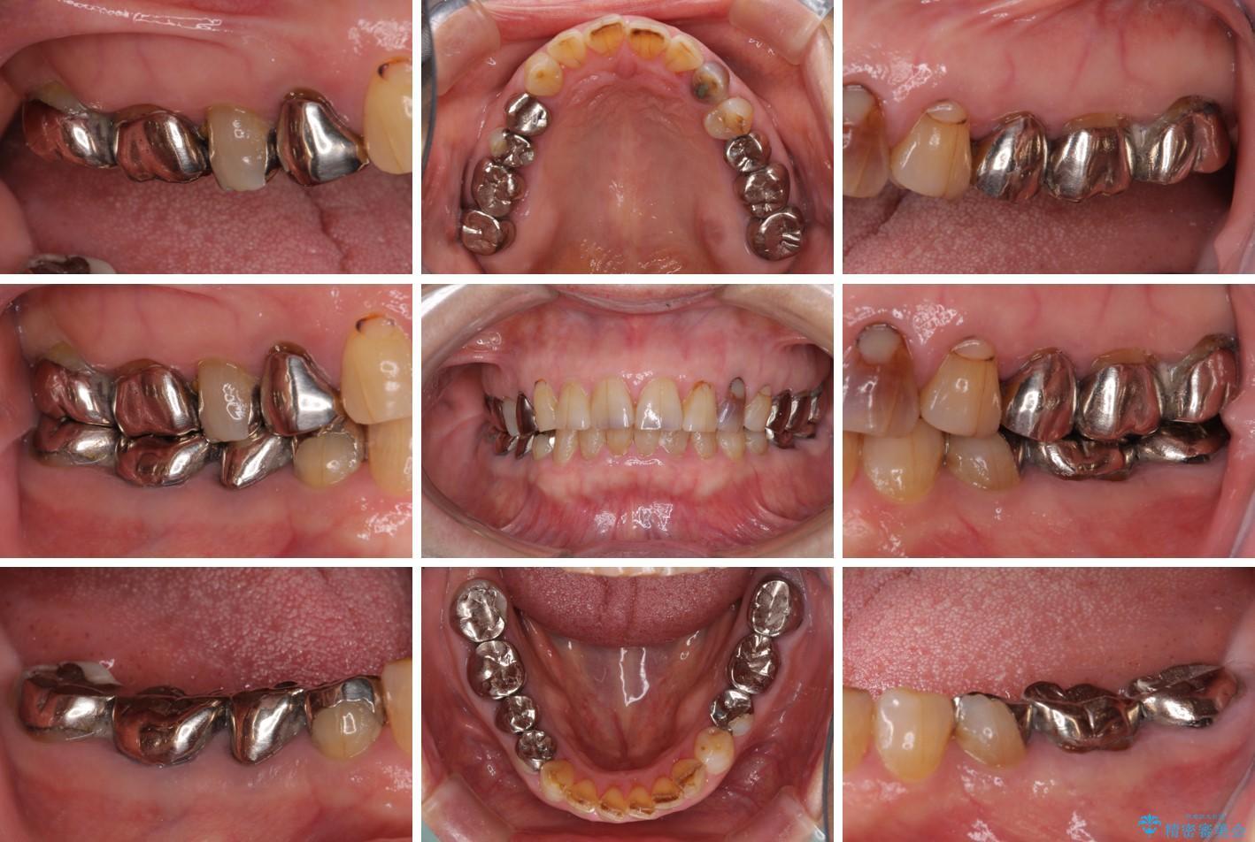 全ての奥歯の銀歯をセラミックに メタルフリー治療 ビフォー