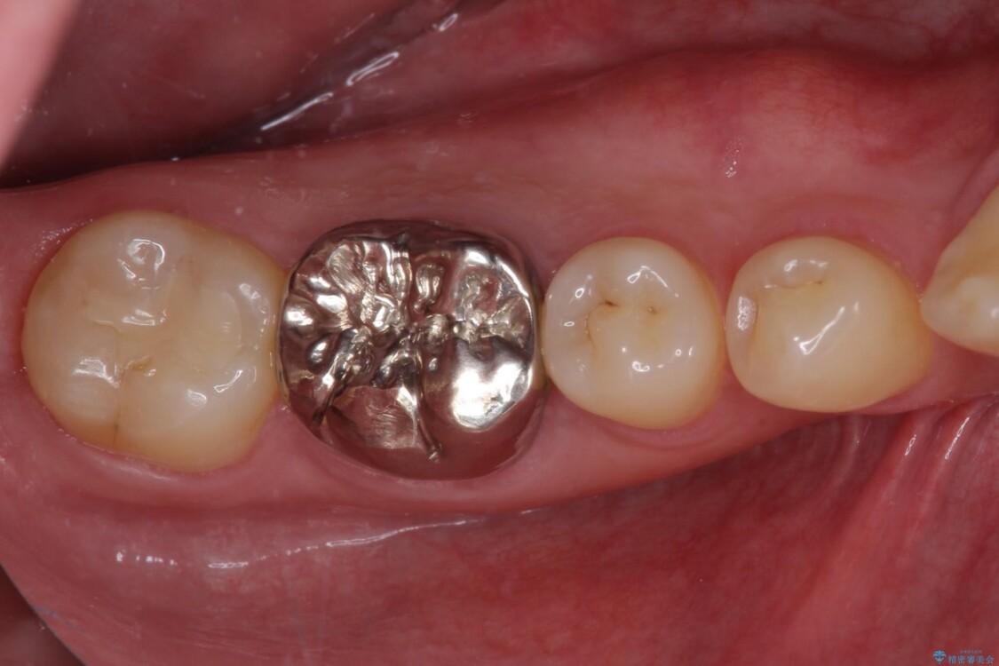 奥歯の銀歯が目立って気になる 奥歯のセラミッククラウン ビフォー