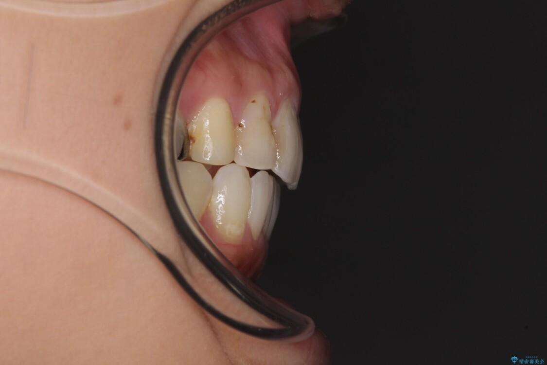 後戻りを治したい 骨格的なズレの大きい方のインビザライン矯正 治療後画像