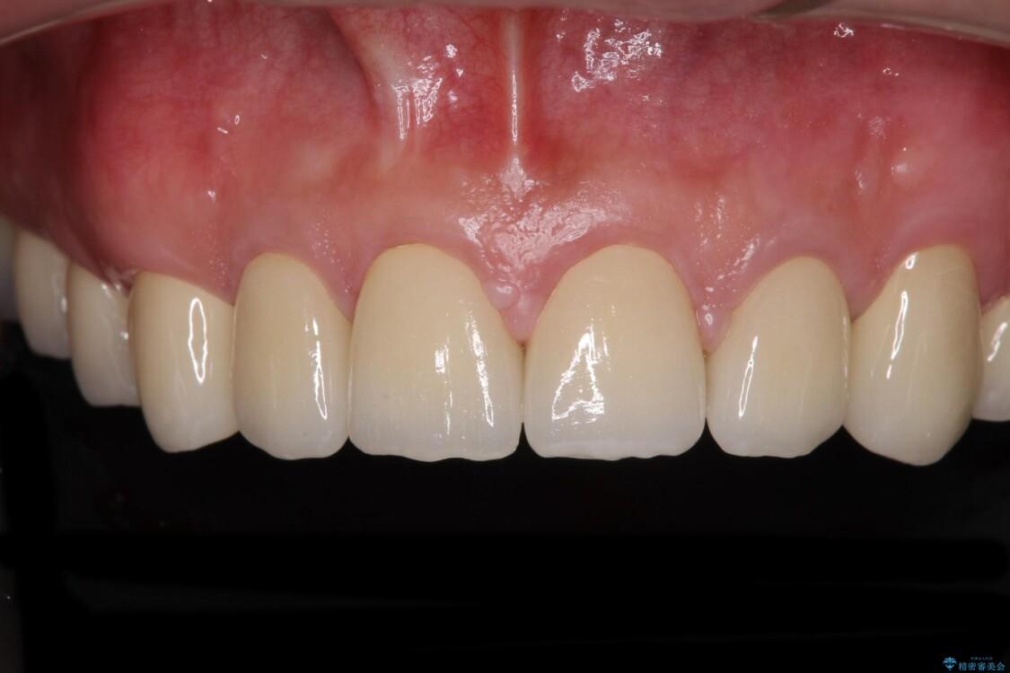 統一感のない前歯を綺麗にしたい オールセラミッククラウンによる治療 アフター