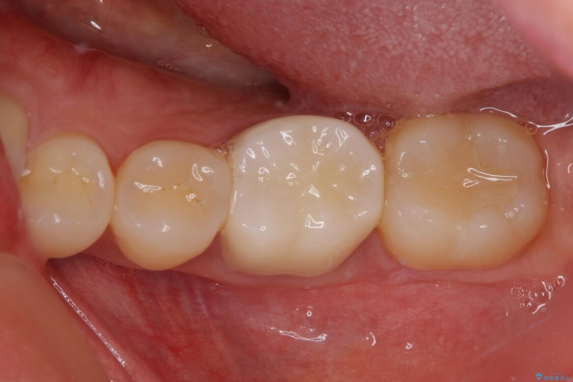他院で治療したはずの奥歯が痛い 根管治療とオールセラミッククラウン アフター