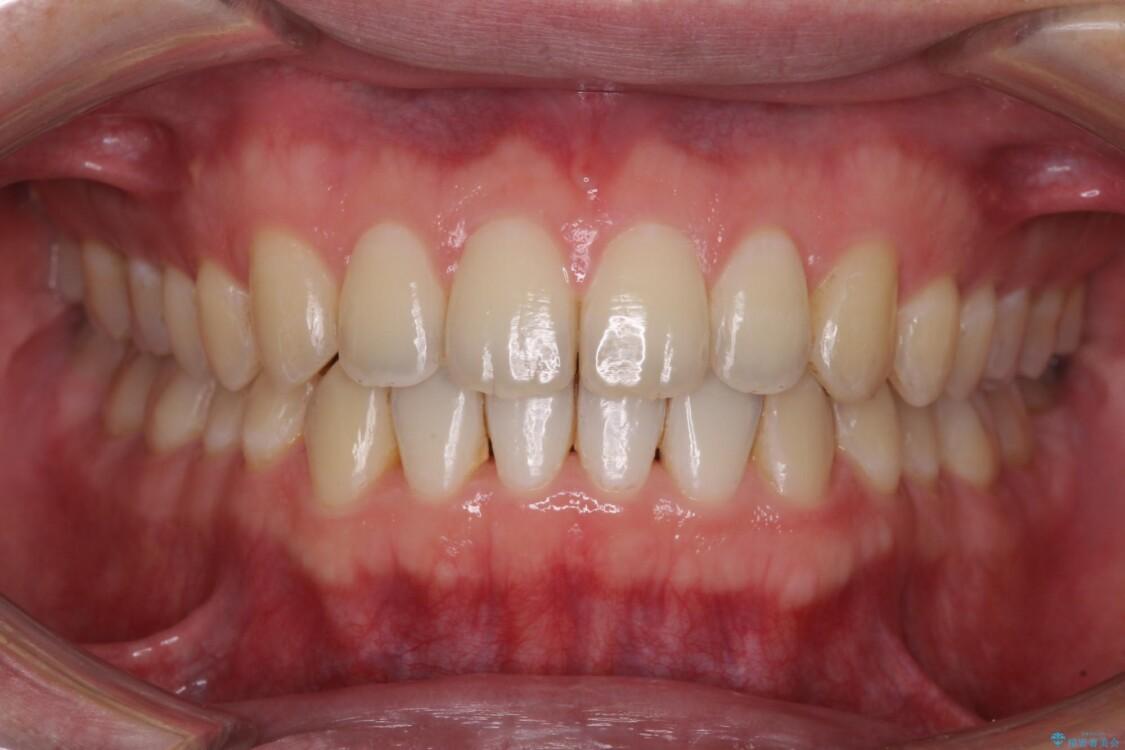前歯すきっ歯の改善 インビザライン矯正治療 治療後画像