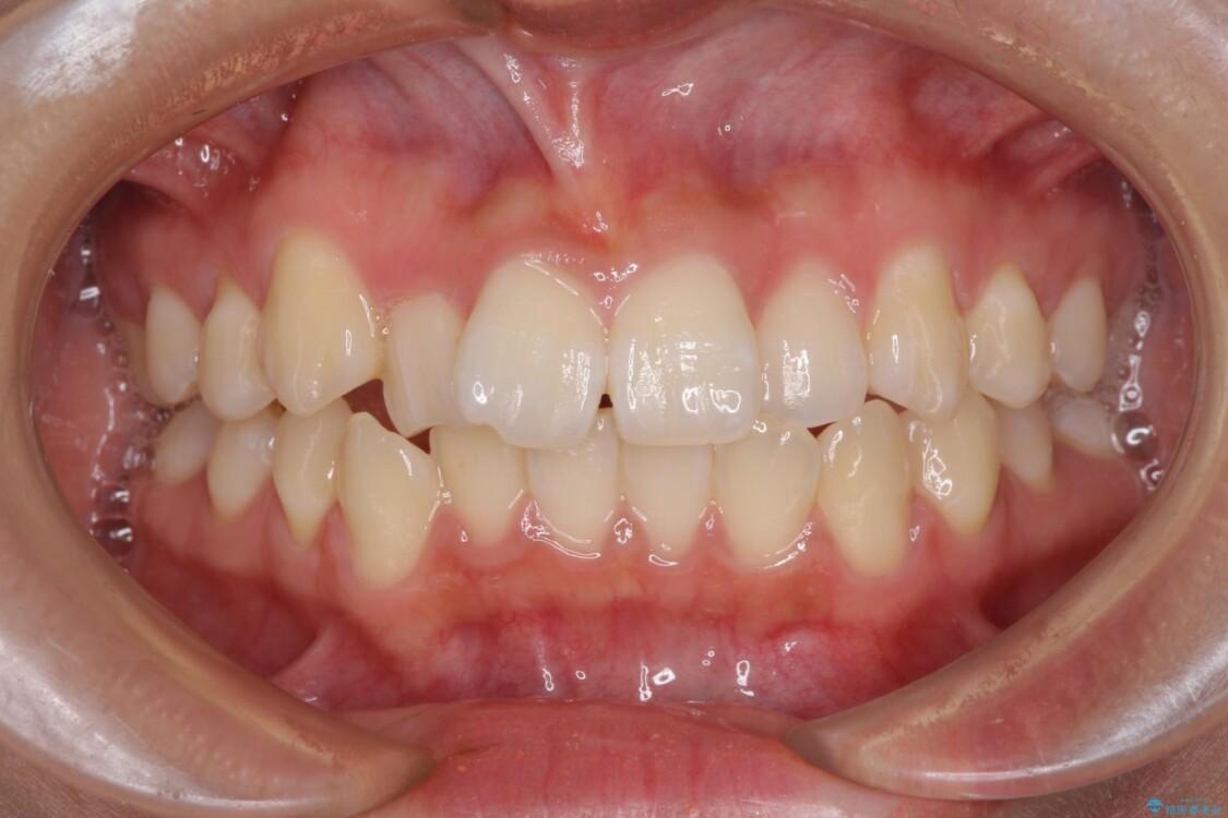 短期間で楽に治療を進めたい ワイヤー装置での非抜歯矯正 ビフォー