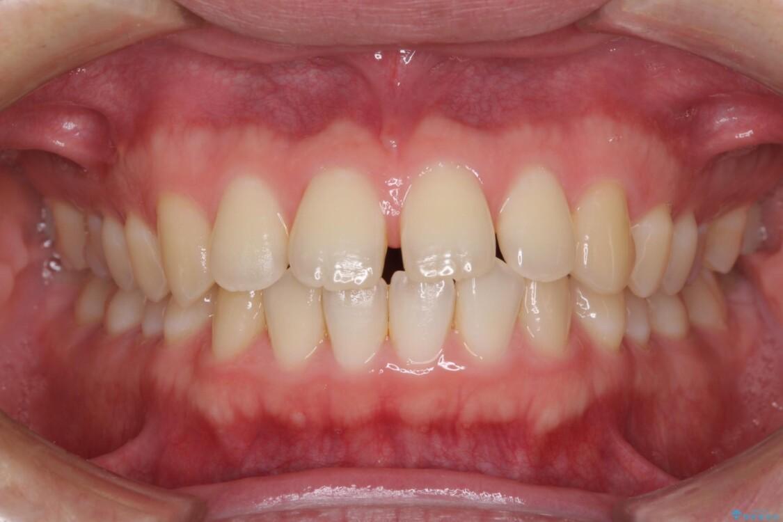前歯すきっ歯の改善 インビザライン矯正治療 治療前画像