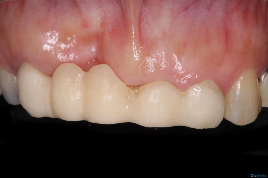 汚い仮歯で困っている 前歯のオールセラミックブリッジ ビフォー