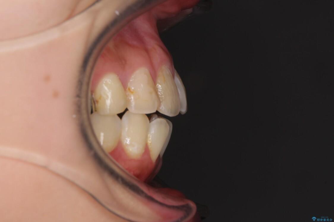 後戻りを治したい 骨格的なズレの大きい方のインビザライン矯正 治療前画像