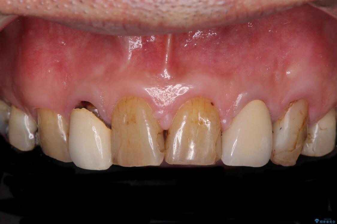 統一感のない前歯を綺麗にしたい オールセラミッククラウンによる治療 ビフォー