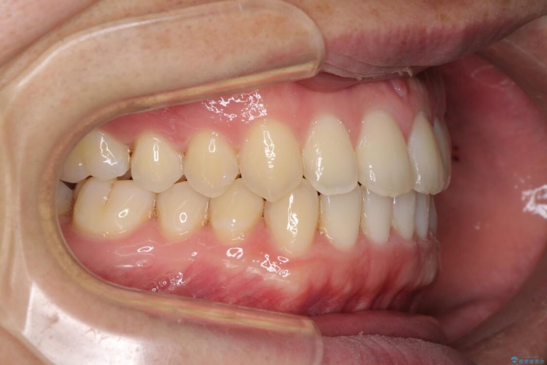 前歯すきっ歯の改善 インビザライン矯正治療 治療途中画像