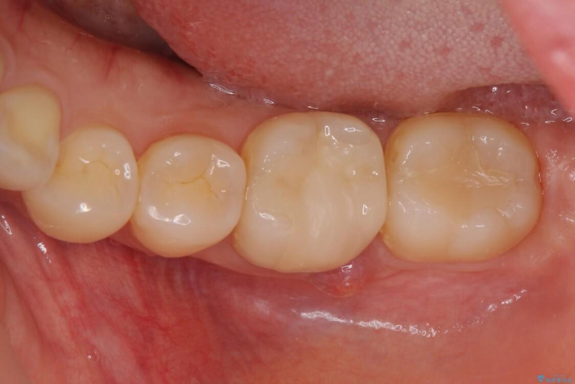 他院で治療したはずの奥歯が痛い 根管治療とオールセラミッククラウン ビフォー