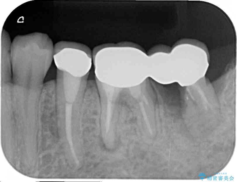 痛みを感じる奥歯 根管治療とインプラント治療 ビフォー