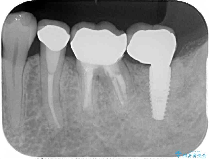 痛みを感じる奥歯 根管治療とインプラント治療 アフター
