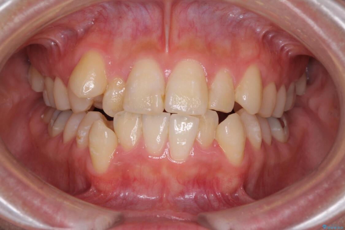 上下の八重歯を治したい インビザラインと補助装置を用いた抜歯治療 ビフォー