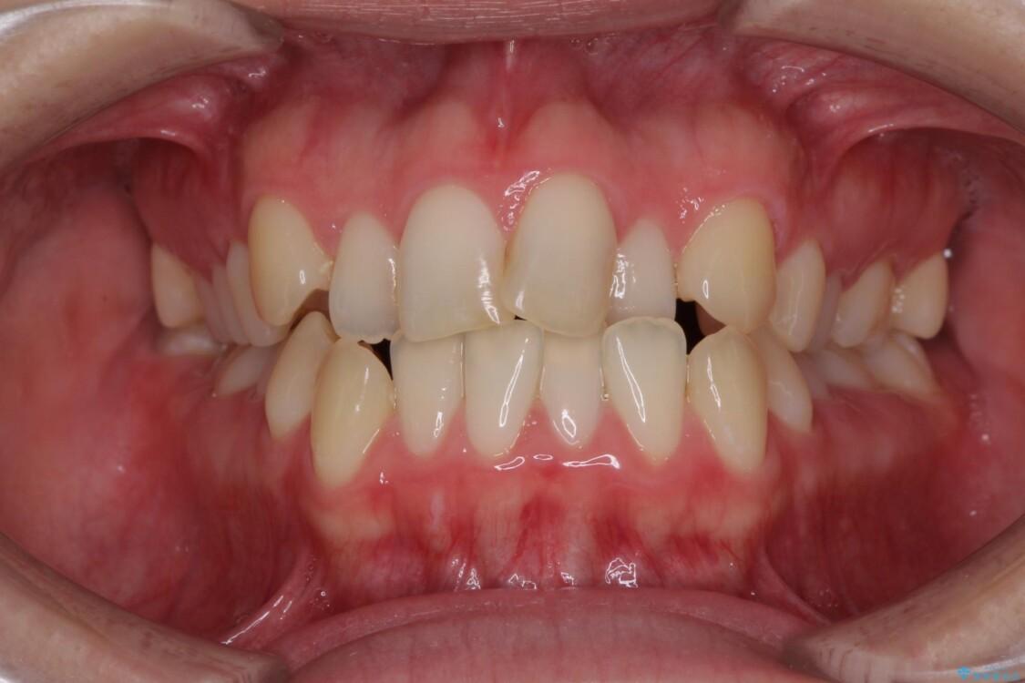 前歯のクロスバイトを治したい インビザラインによる矯正治療 ビフォー