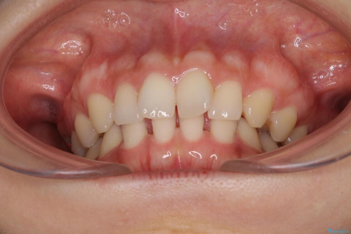 隙間だらけの歯列をきれいに インビザライン矯正とセラミック補綴治療 治療前画像