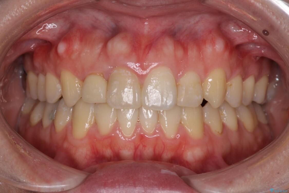 狭い上顎骨を拡大 インビザラインによる非抜歯矯正 アフター