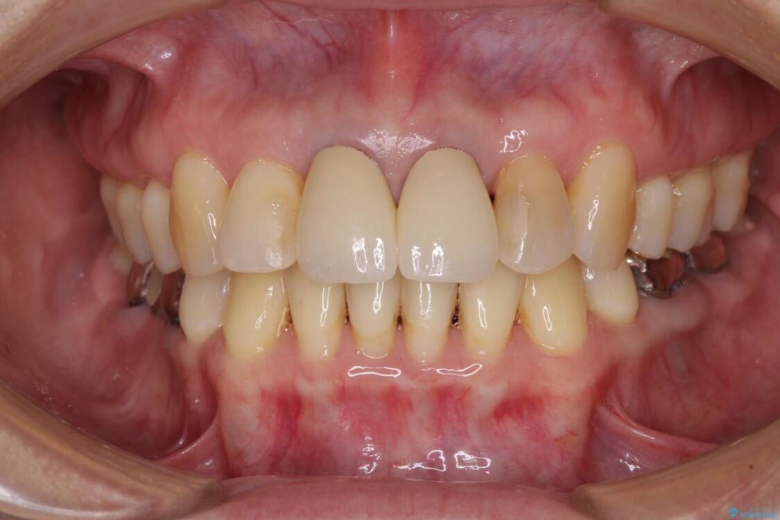 部分矯正とセラミック 前歯の審美治療 アフター