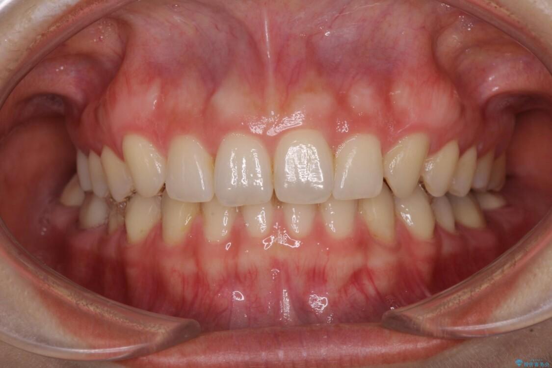 隙間だらけの歯列をきれいに インビザライン矯正とセラミック補綴治療 アフター